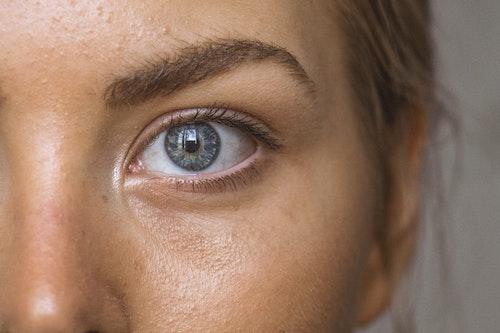 Natural Eyelid Surgery