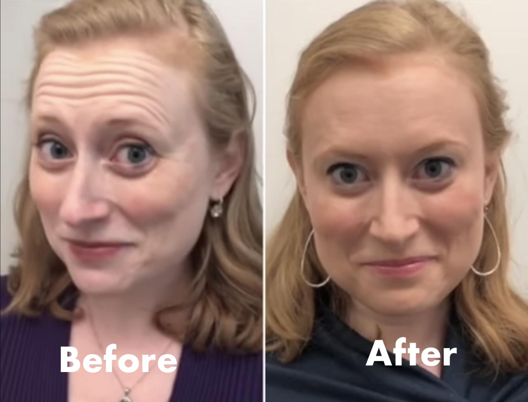 Botox is magic
